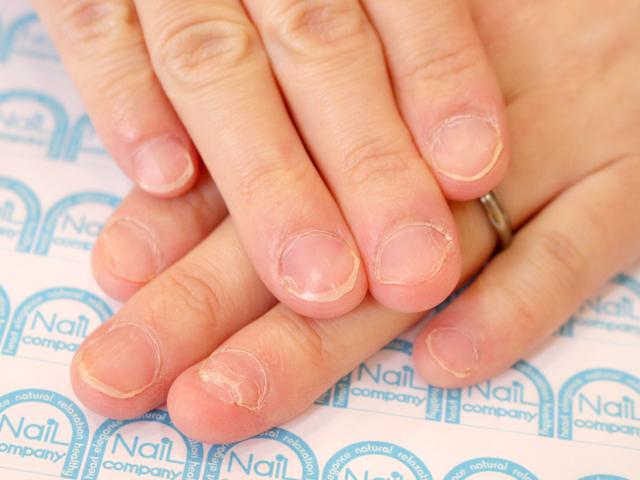 爪 でこぼこ 親指だけ 足 何科 塗り薬